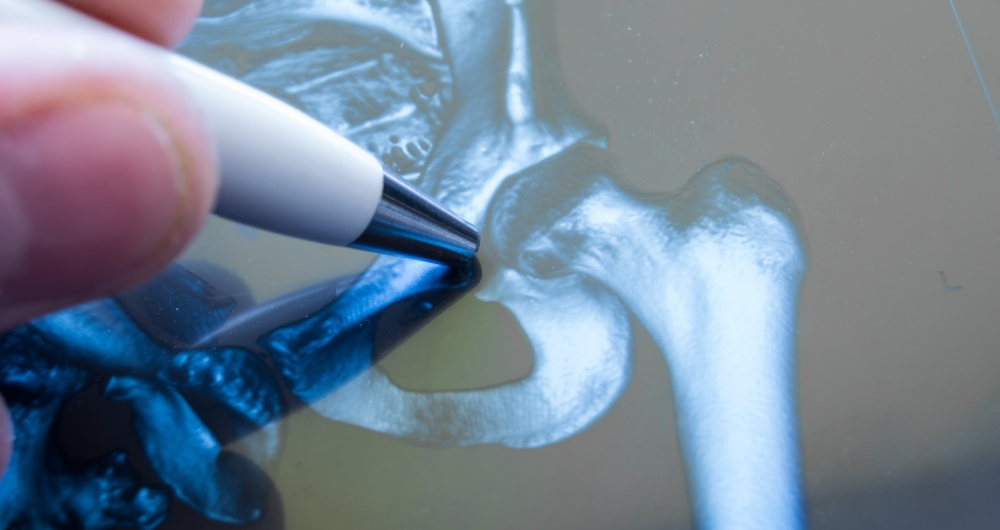 UCSF Fresno Research Brings Advanced Hip Surgery Alternative