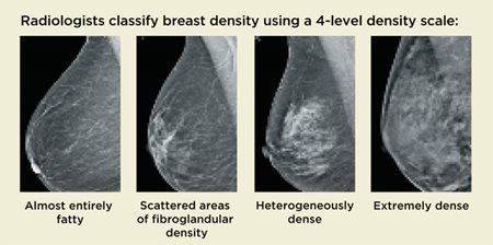 4 Level Breast Density Scale